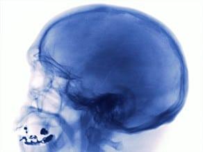 Violent video games alter brain function in young men
