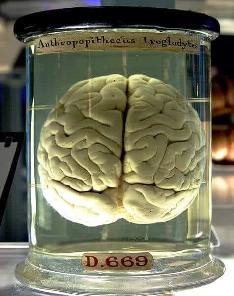 Drug reverses aging-associated changes in brain cells