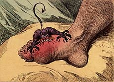 Gout study offers genetic insight into 'disease of kings'