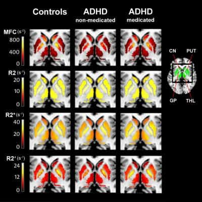 Scientists propose a new lead for Alzheimer's research