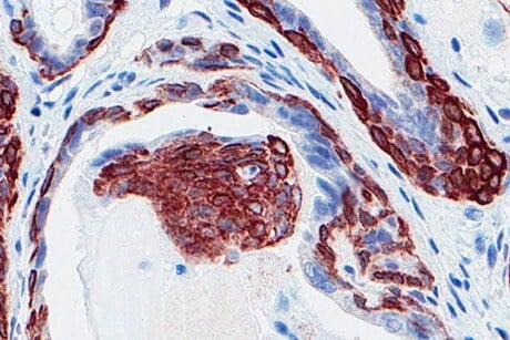 Study: Testosterone therapy does not increase aggressive prostate cancer risk