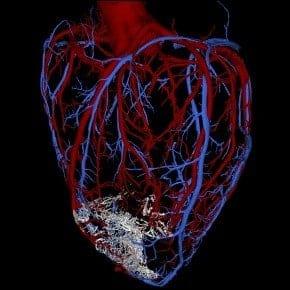 CardiacCells-Vascular
