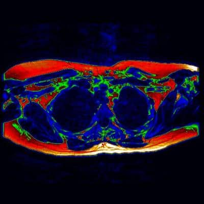 Key milestone for brown fat research with a ground-breaking MRI scan