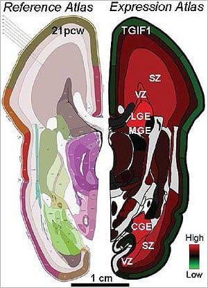Atlas details gene activity of the prenatal human brain