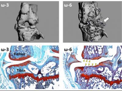 Omega 3 fatty acids lessen severity of osteoarthritis in mice