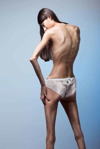 Brains of those with anorexia and bulimia can override urge to eat