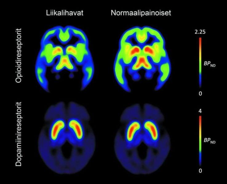 Obesity associated with brain's neurotransmitters
