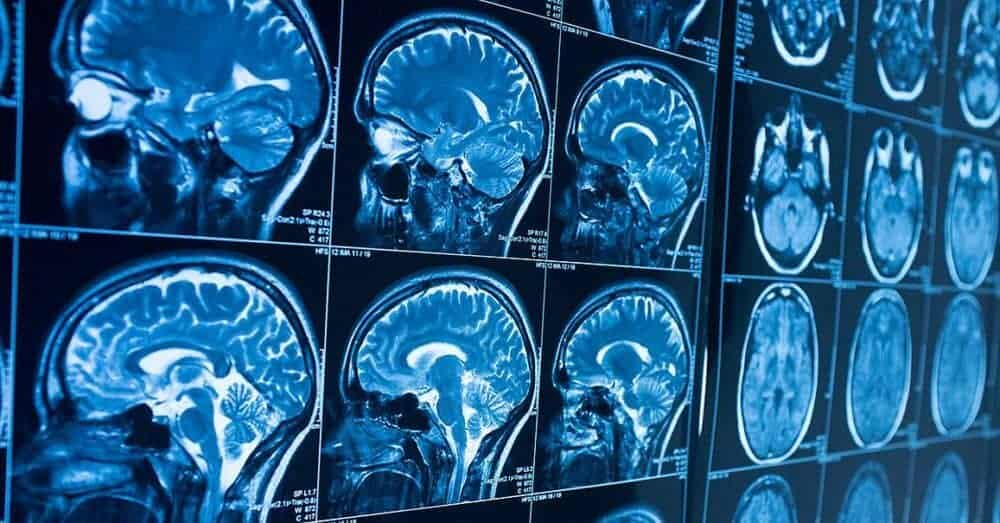 Neuroimaging technique may help predict autism among high-risk infants