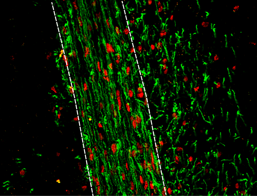 New drug target for remyelination in Multiple Sclerosis