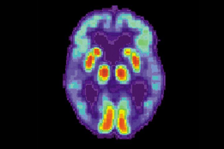 BredesenProtocol Not Proven to Prevent or Reverse Alzheimer's, Says UCSF Neurologist