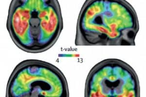 Game-changing blood test for Alzheimer's disease