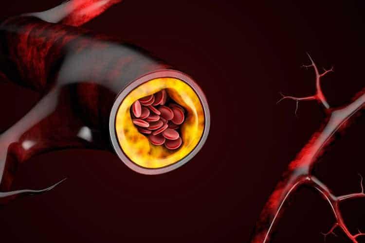 Fitful nightly sleep linked to chronic inflammation, hardened arteries