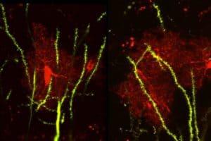 Brain protein linked to seizures, abnormal social behaviors