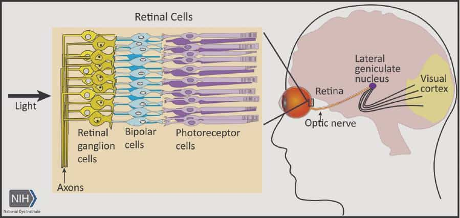 Scientists discover gene therapy provides neuroprotection to prevent glaucoma vision loss