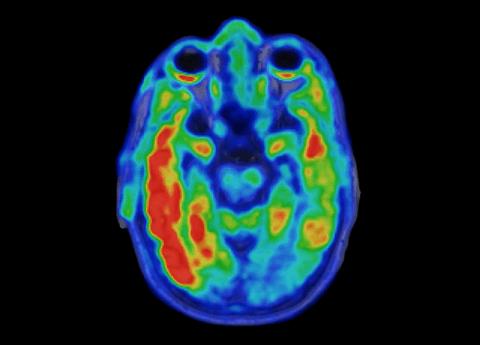 Tau levels predict cognitive decline in Alzheimer's