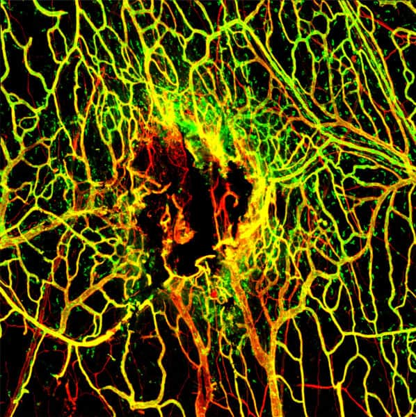 Infection hinders blood vessel repair following traumatic brain or cerebrovascular injuries